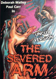 212 SEVERED ARM (1973) Fully Uncut 91 Minute Print!